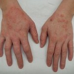 Hives on hands treat quickly